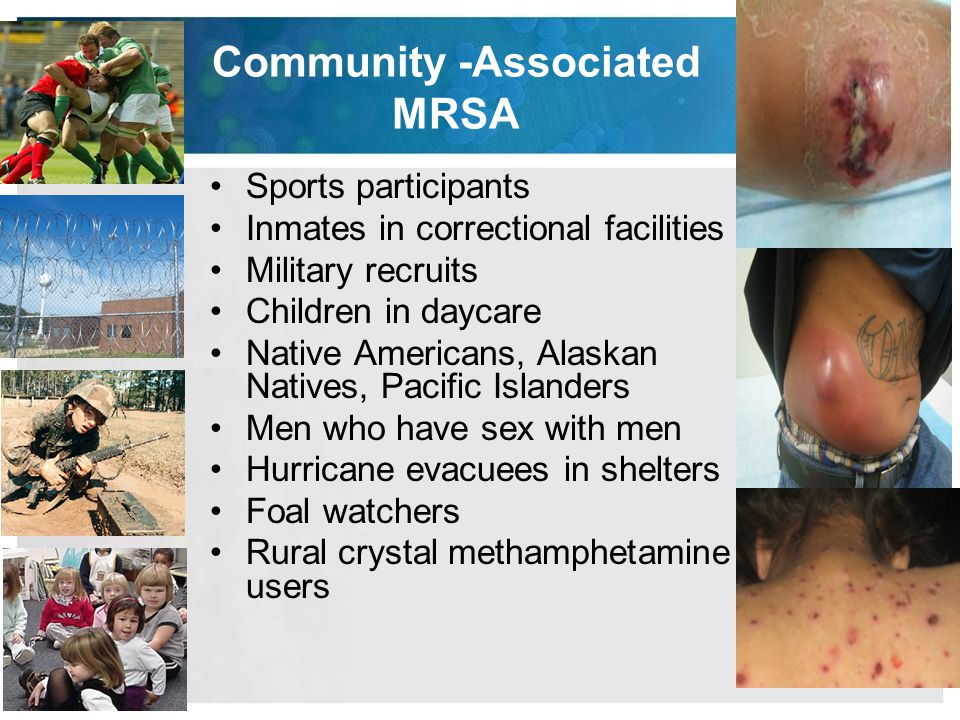 Community -Associated MRSA