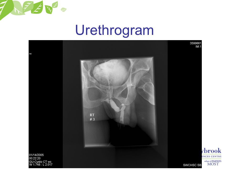 Urethrogram