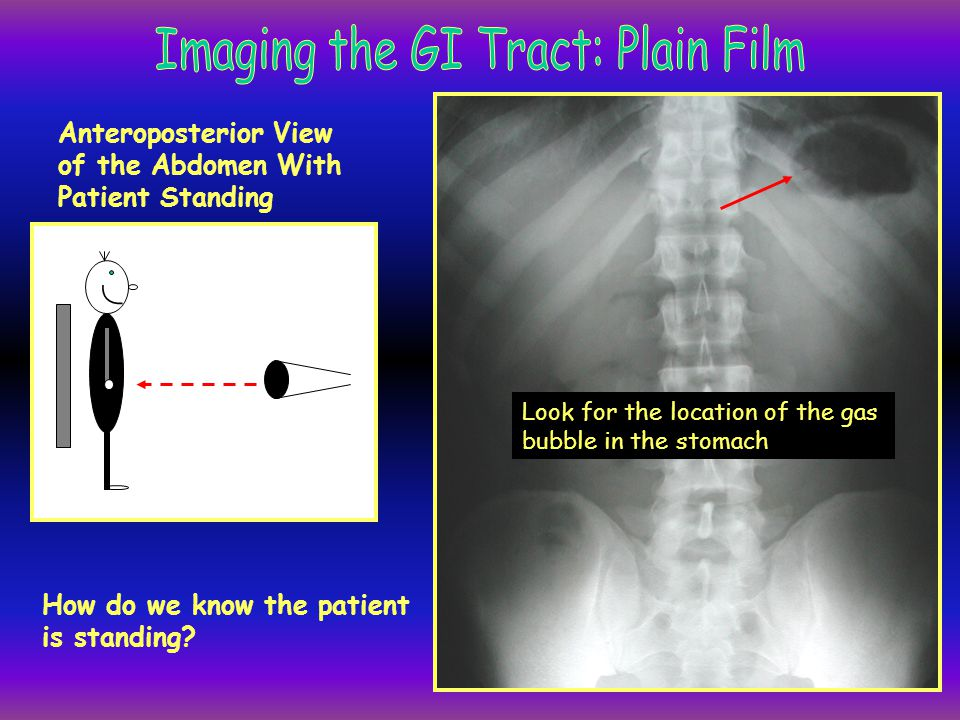 Imaging the GI Tract: Plain Film