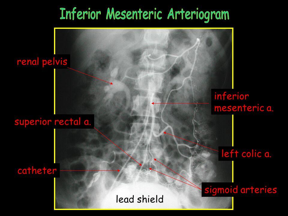 Inferior Mesenteric Arteriogram