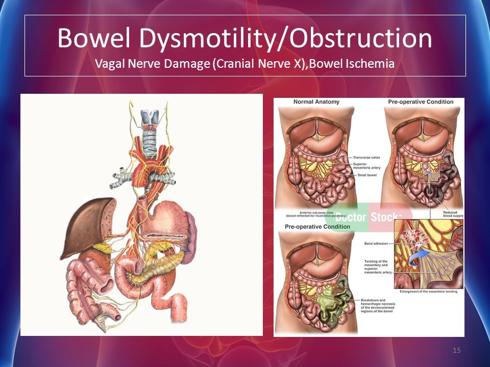 Bowel Dysmotility/Obstruction Vagal Nerve Damage (Cranial Nerve X),Bowel Ischemia