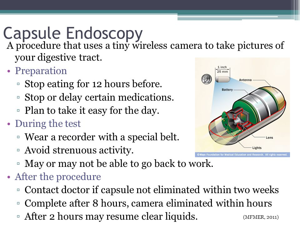 Capsule Endoscopy A procedure that uses a tiny wireless camera to take pictures of your digestive tract.