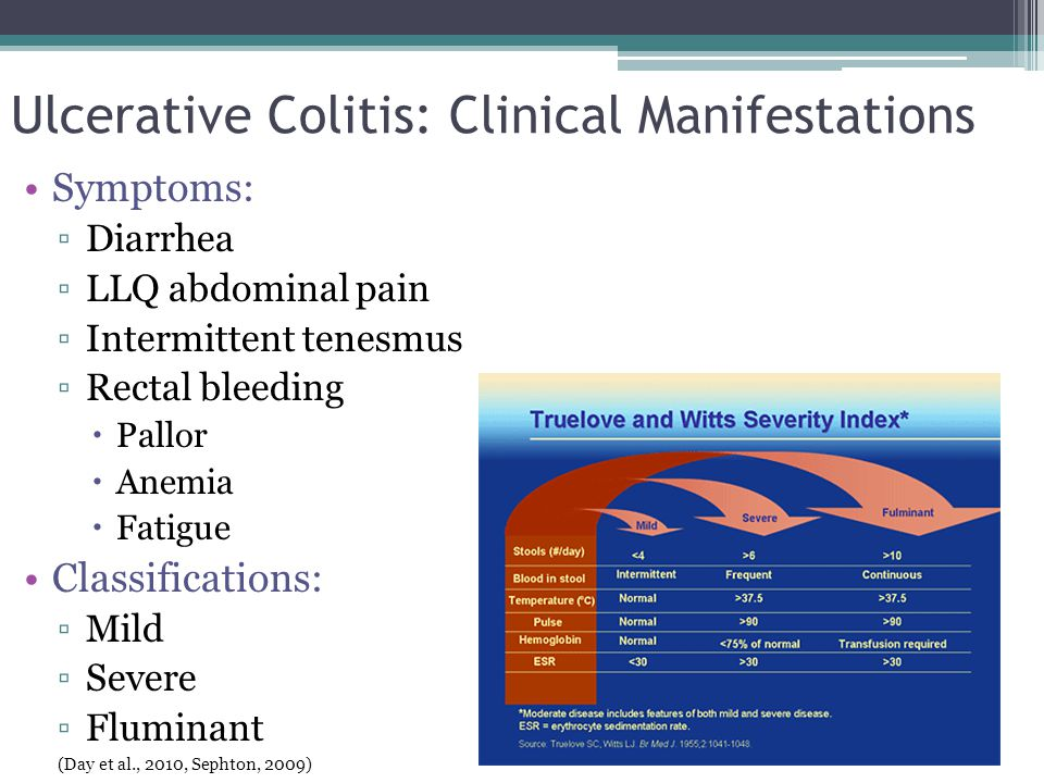 Ulcerative Colitis: Clinical Manifestations