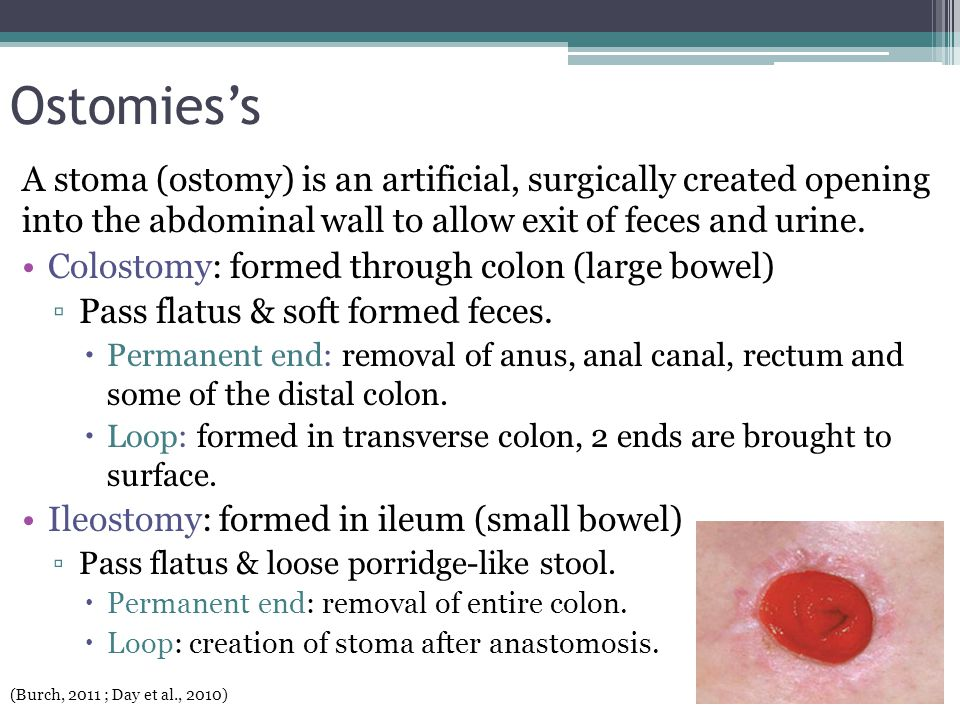 Ostomies's A stoma (ostomy) is an artificial, surgically created opening into the abdominal wall to allow exit of feces and urine.