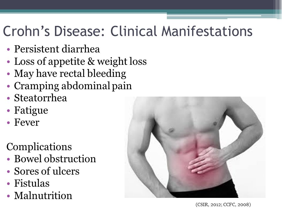 Crohn's Disease: Clinical Manifestations