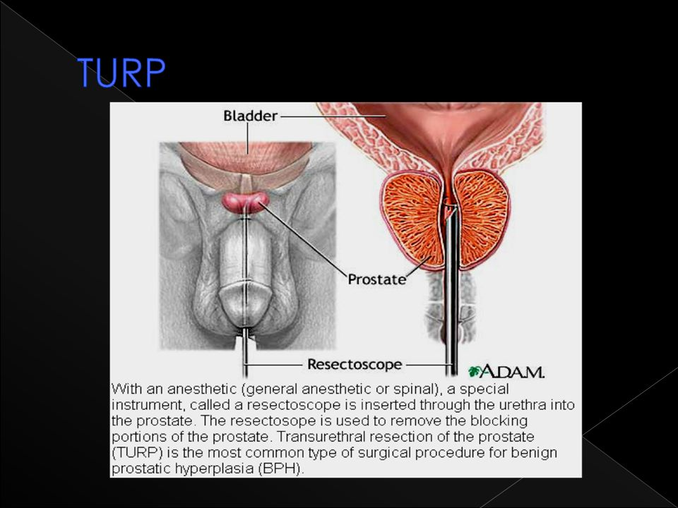 TURP Most common type of surgical procedure for BPH