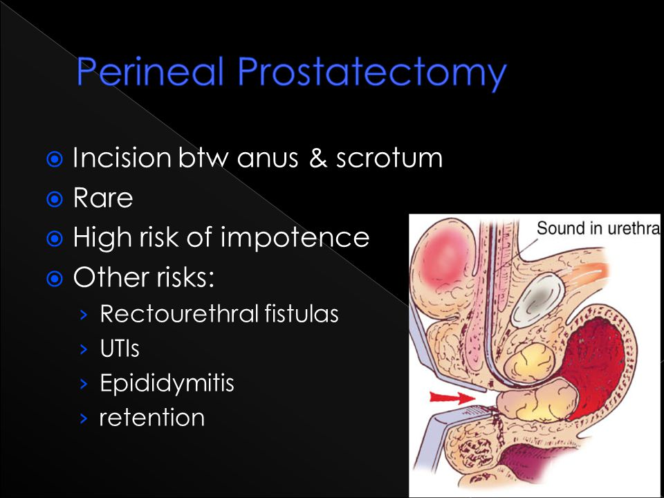 Perineal Prostatectomy