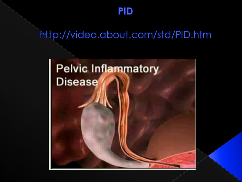 PID http://video.about.com/std/PID.htm