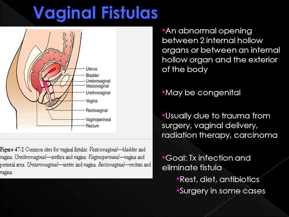 Vaginal Fistulas An abnormal opening between 2 internal hollow organs or between an internal hollow organ and the exterior of the body.