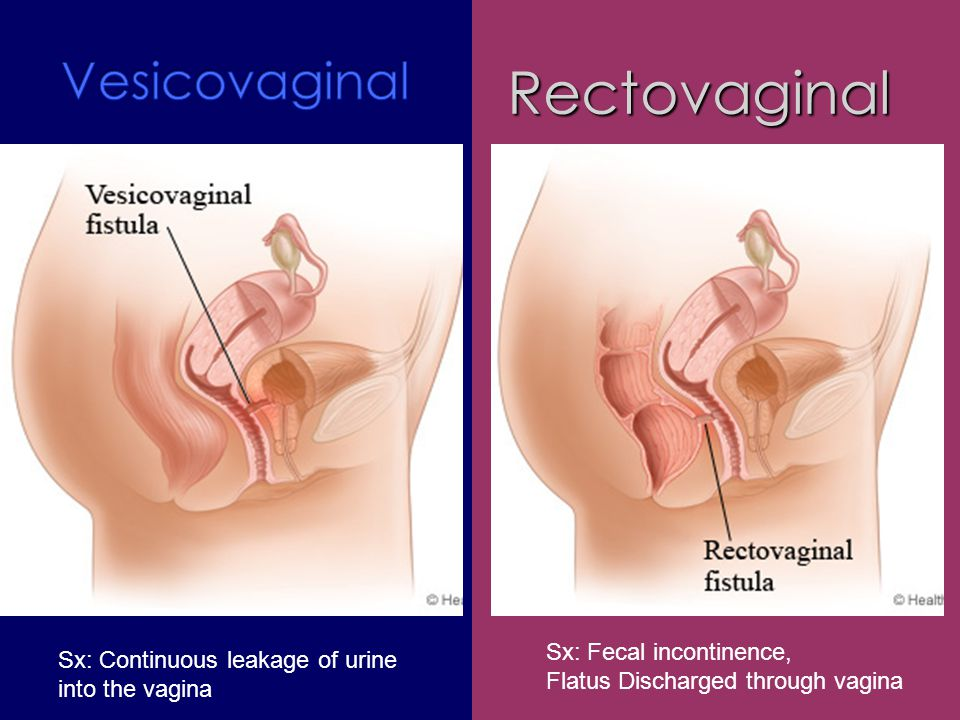 Rectovaginal Vesicovaginal Sx: Fecal incontinence,