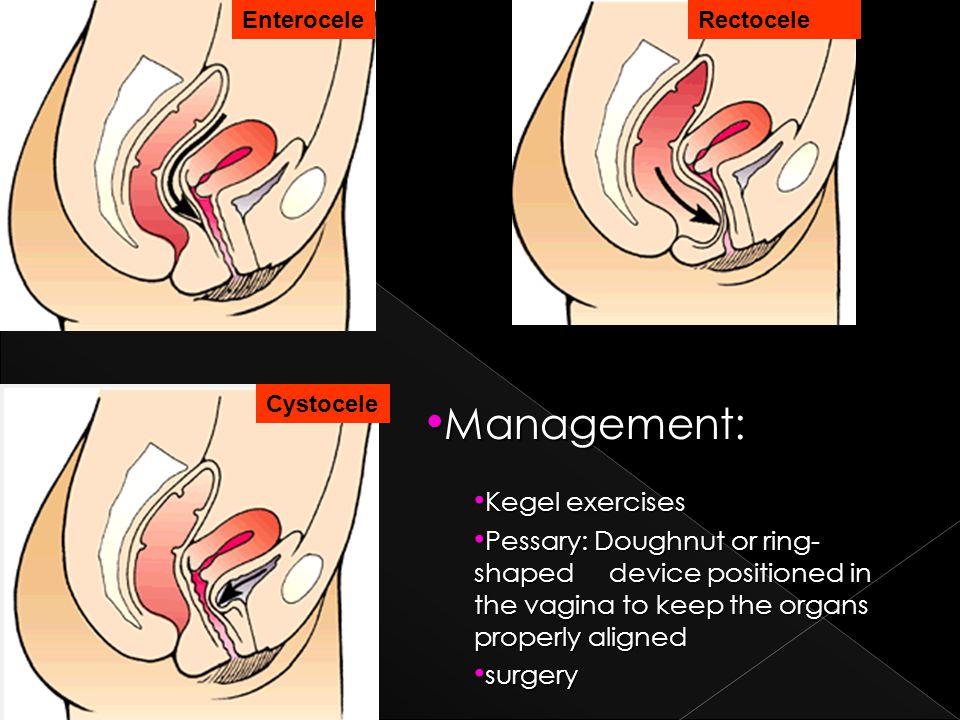 Management: Kegel exercises