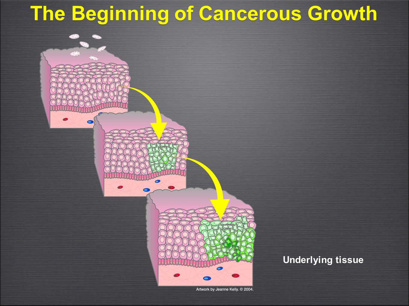 The Beginning of Cancerous Growth