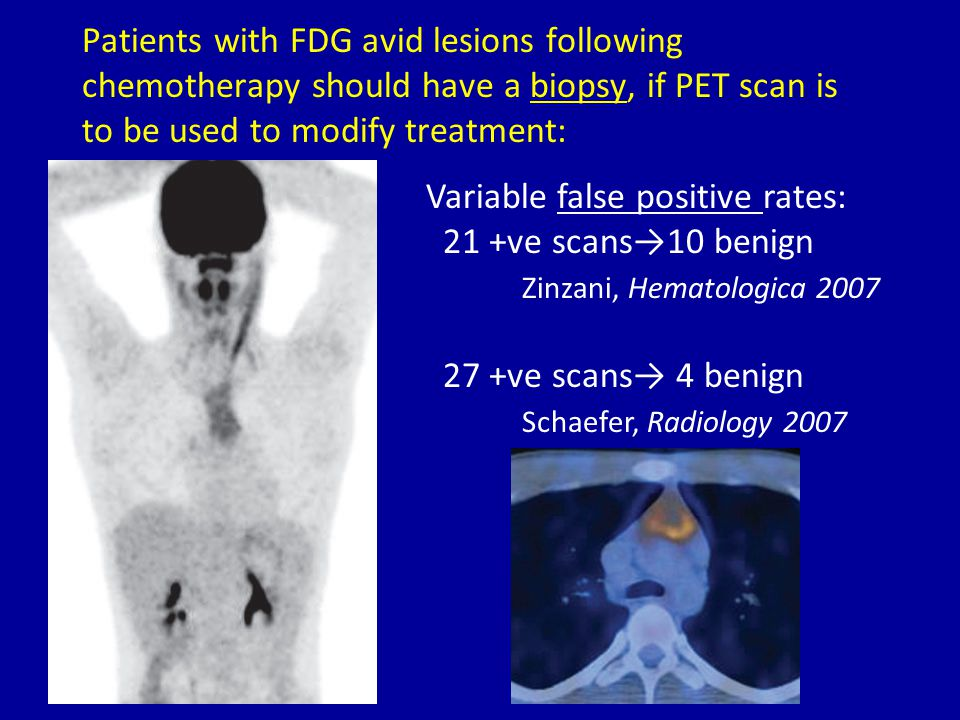 Patients with FDG avid lesions following chemotherapy should have a biopsy, if PET scan is to be used to modify treatment: