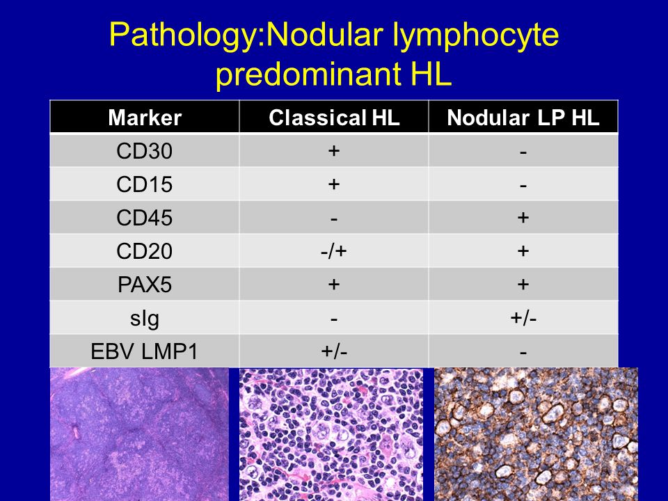 Pathology:Nodular lymphocyte predominant HL