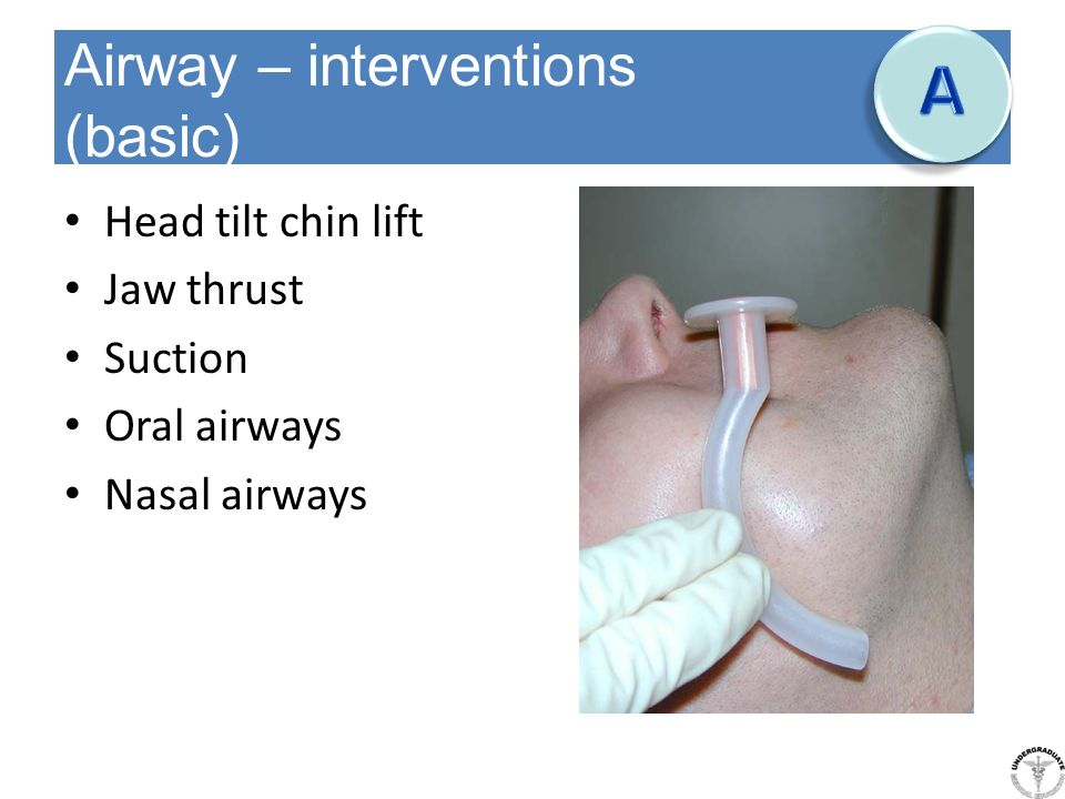 Airway – interventions (basic)