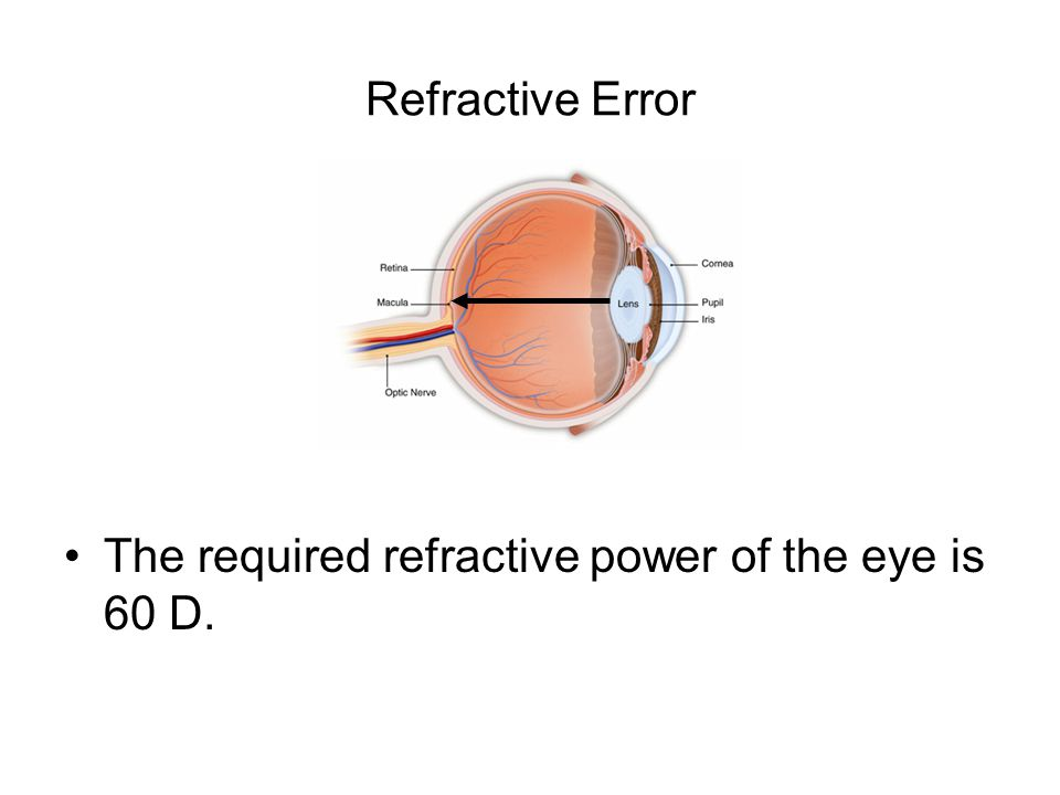 Refractive Error The required refractive power of the eye is 60 D.