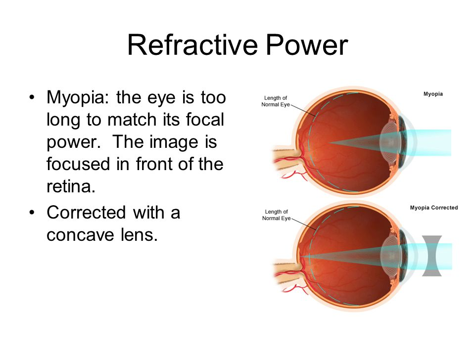 Refractive Power Myopia: the eye is too long to match its focal power. The image is focused in front of the retina.