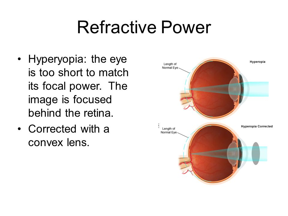 Refractive Power Hyperyopia: the eye is too short to match its focal power. The image is focused behind the retina.