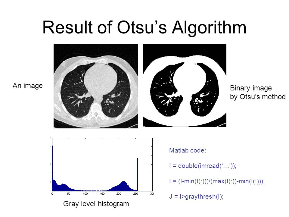 Result of Otsu's Algorithm