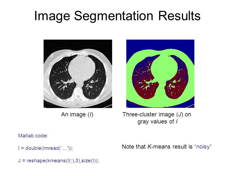 Image Segmentation Results