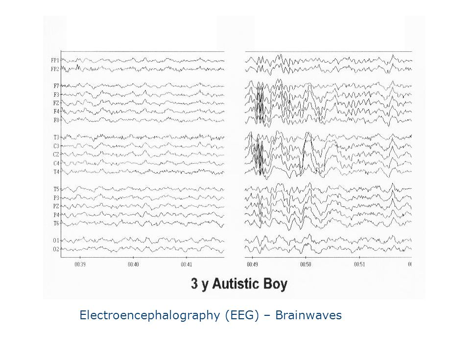 Electroencephalography (EEG) – Brainwaves