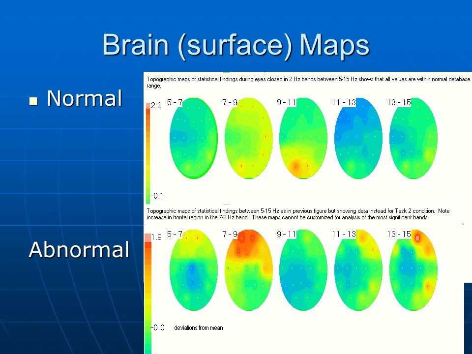 Brain (surface) Maps Normal Abnormal