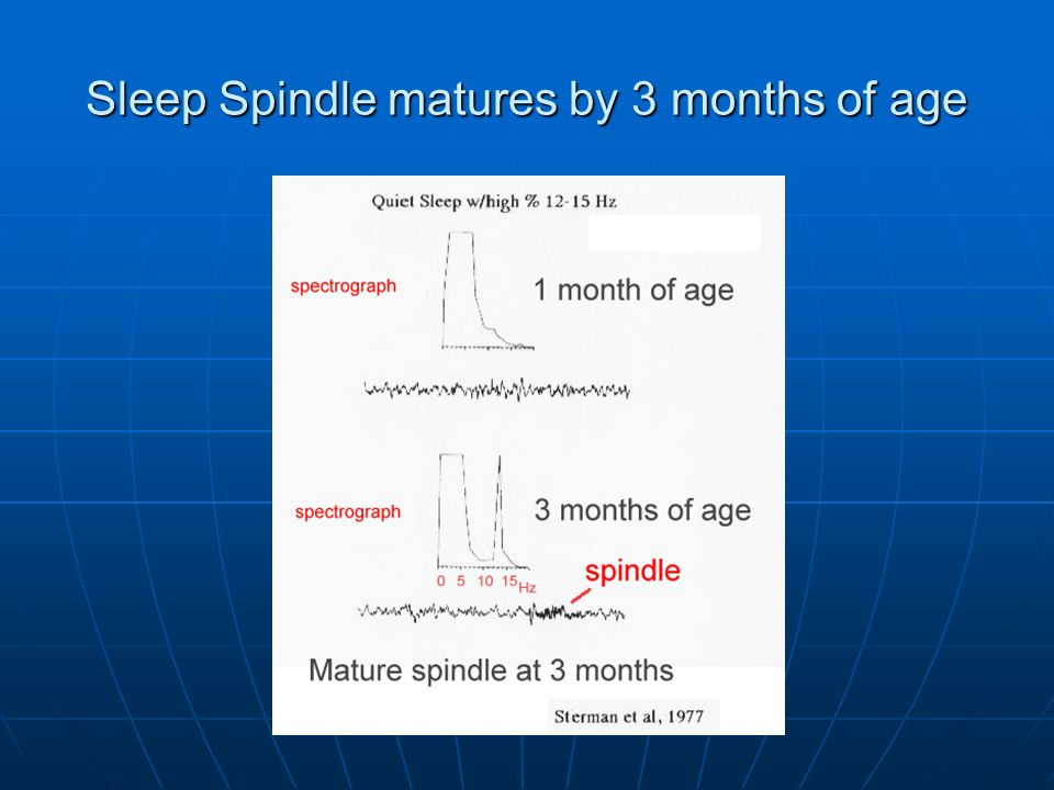 Sleep Spindle matures by 3 months of age