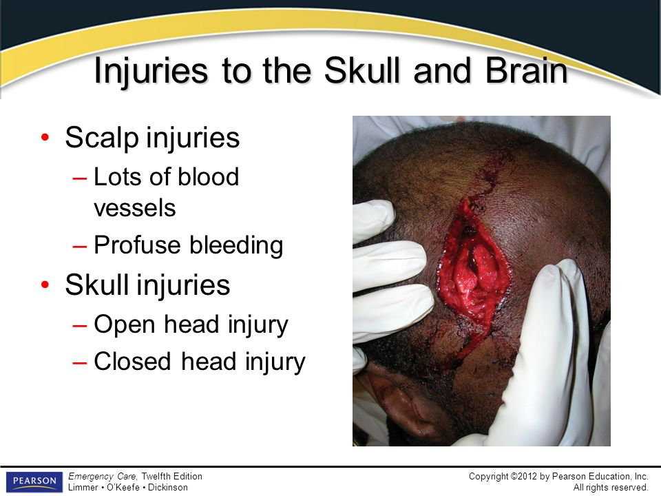Injuries to the Skull and Brain