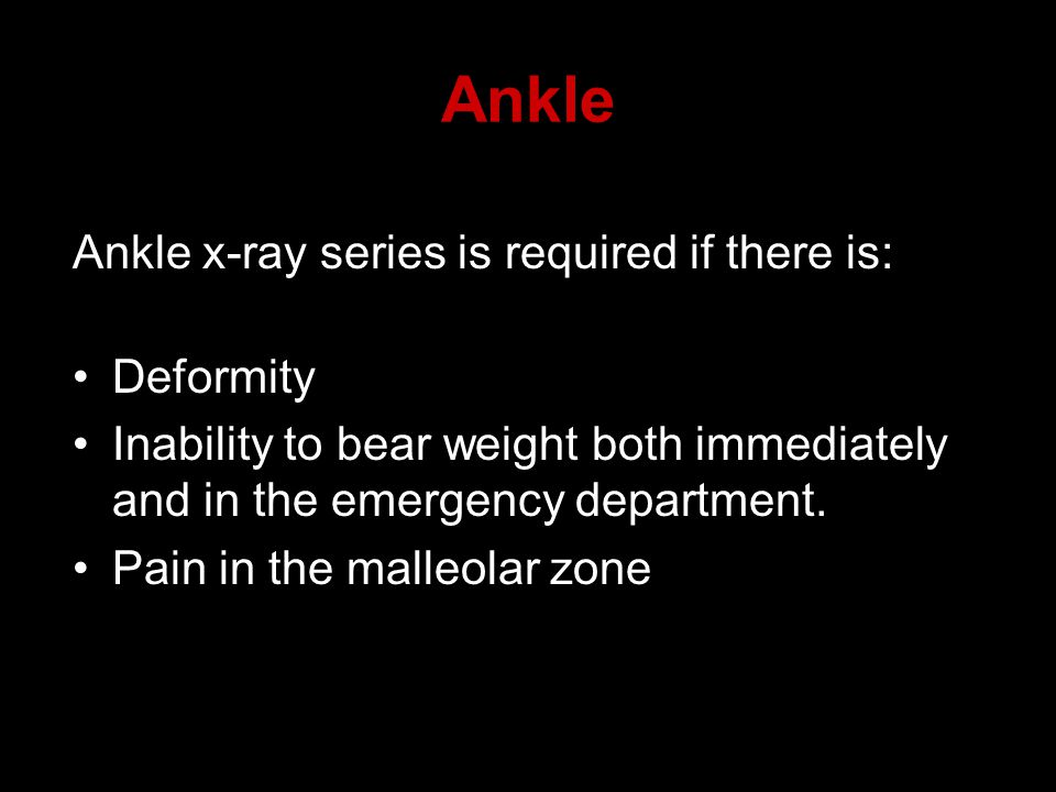 Ankle Ankle x-ray series is required if there is: Deformity