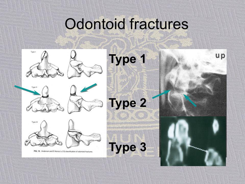 Odontoid fractures Type 1 Type 2 Type 3