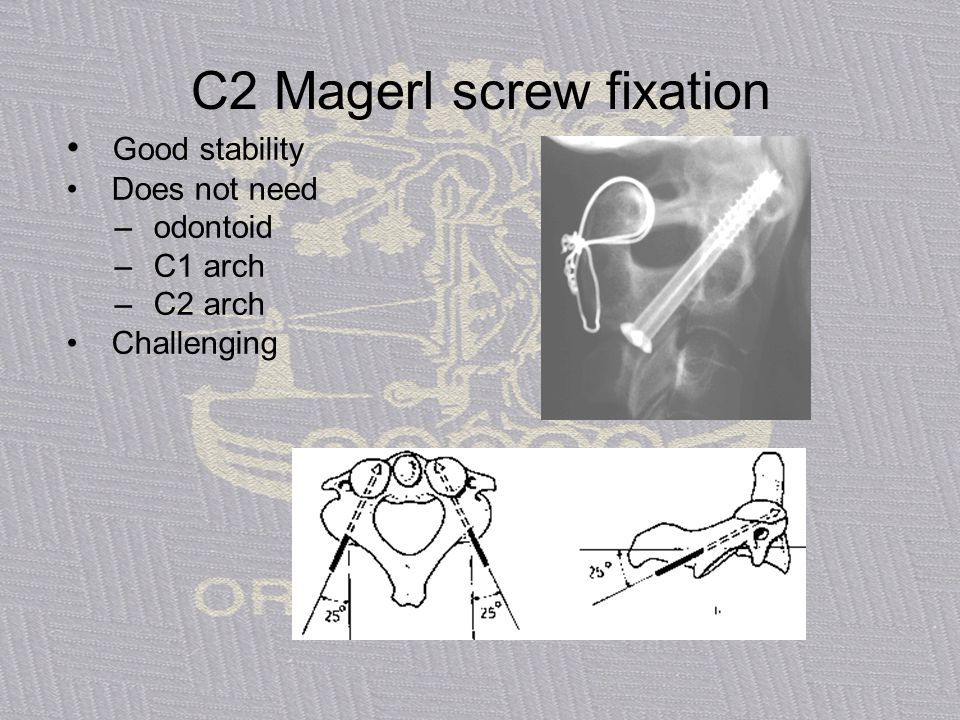 C2 Magerl screw fixation