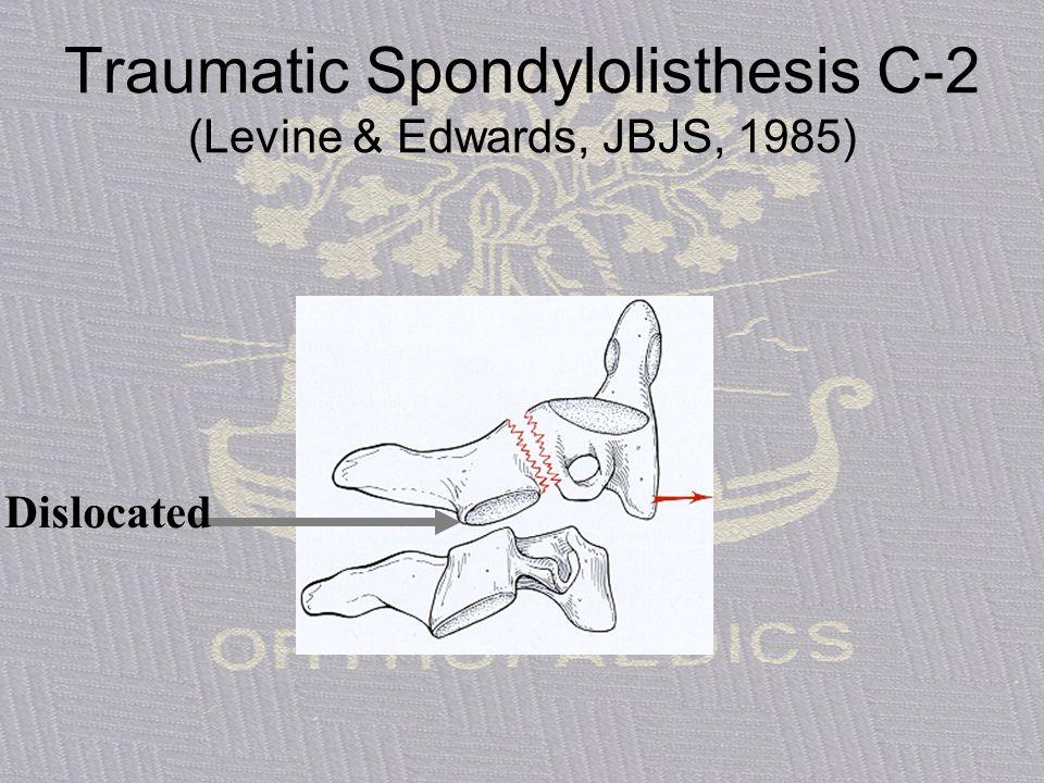 Traumatic Spondylolisthesis C-2 (Levine & Edwards, JBJS, 1985)