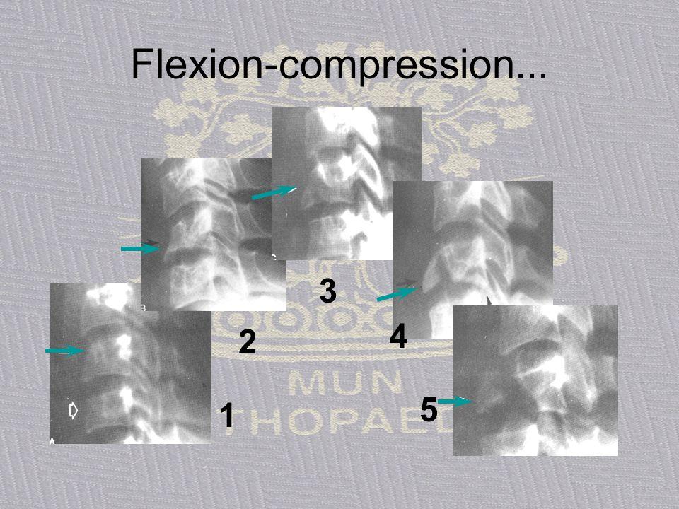 Flexion-compression... Allen B, The Cervical Spine (Chapter 6) ed Sherk et al, Lippincott, Philadelphia, 1989.
