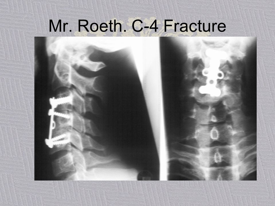 Mr. Roeth. C-4 Fracture