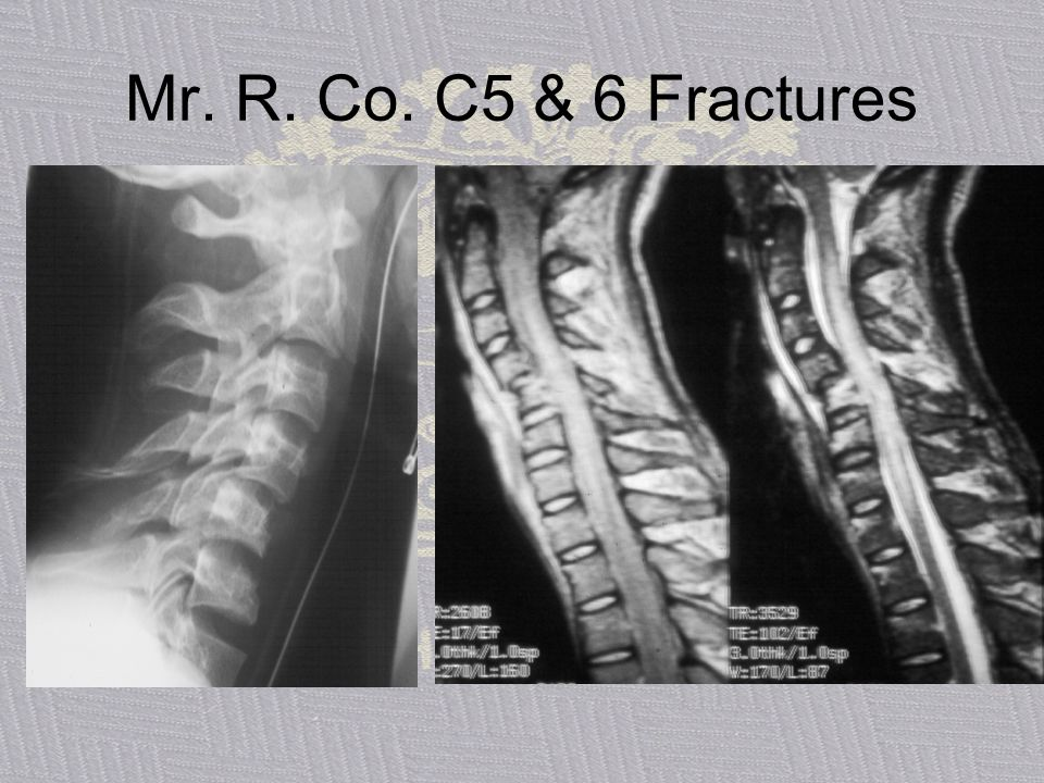 Mr. R. Co. C5 & 6 Fractures