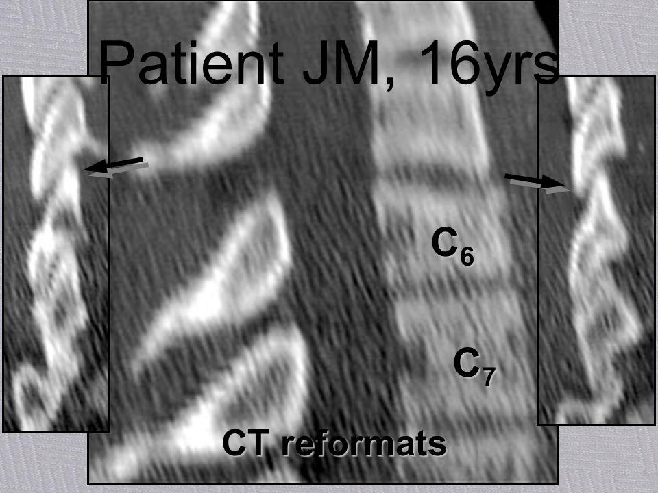Patient JM, 16yrs C6 C7 CT reformats