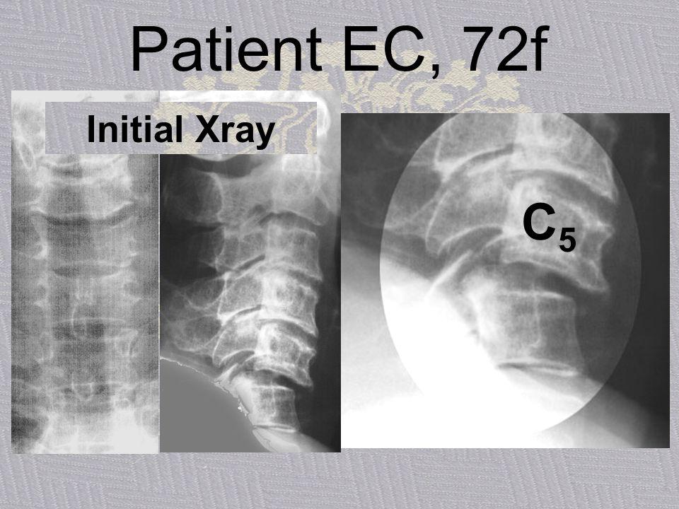 Patient EC, 72f Initial Xray C5