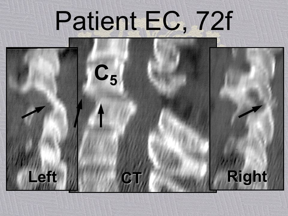 Patient EC, 72f C5 Left CT Right