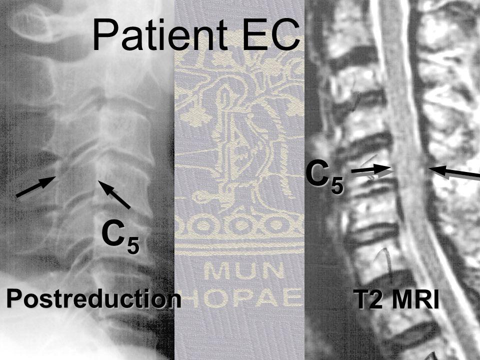 Patient EC, 72f T2 MRI C5 C5 Postreduction