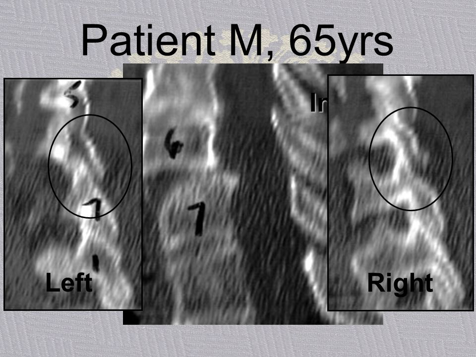 Patient M, 65yrs Initial CT Left Right