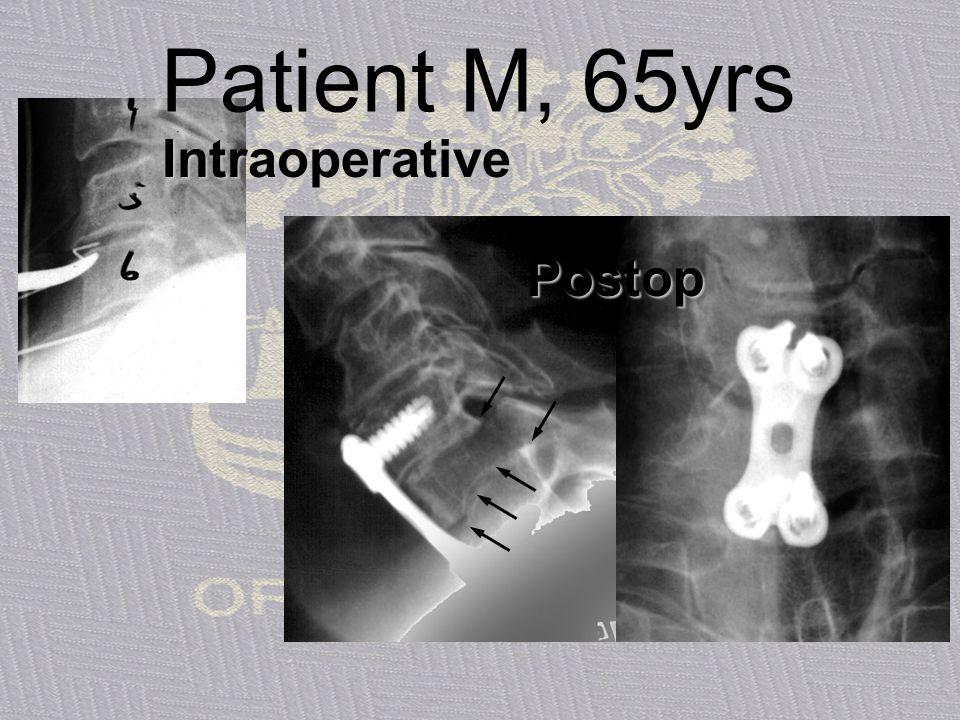 Patient M, 65yrs Intraoperative Postop