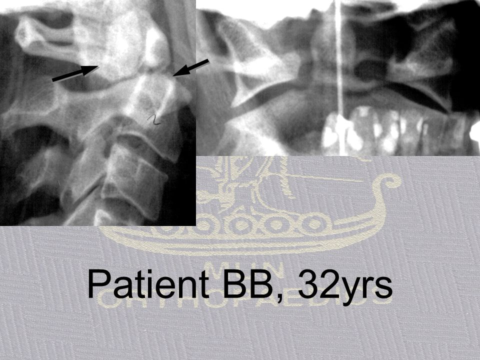 Patient BB, 32yrs