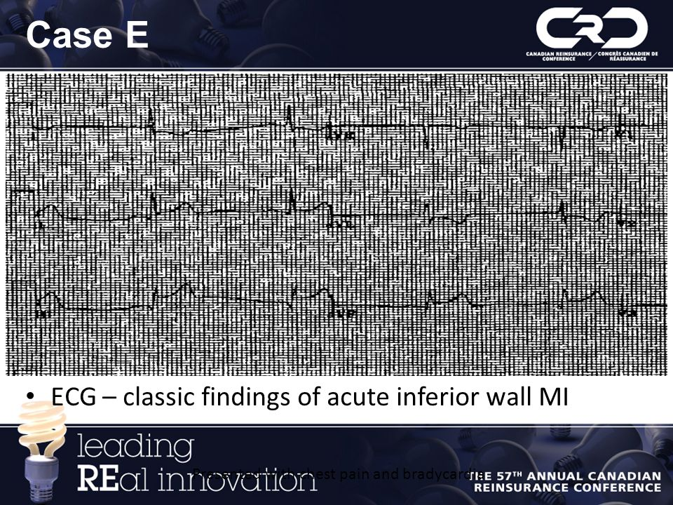 Case E ECG – classic findings of acute inferior wall MI