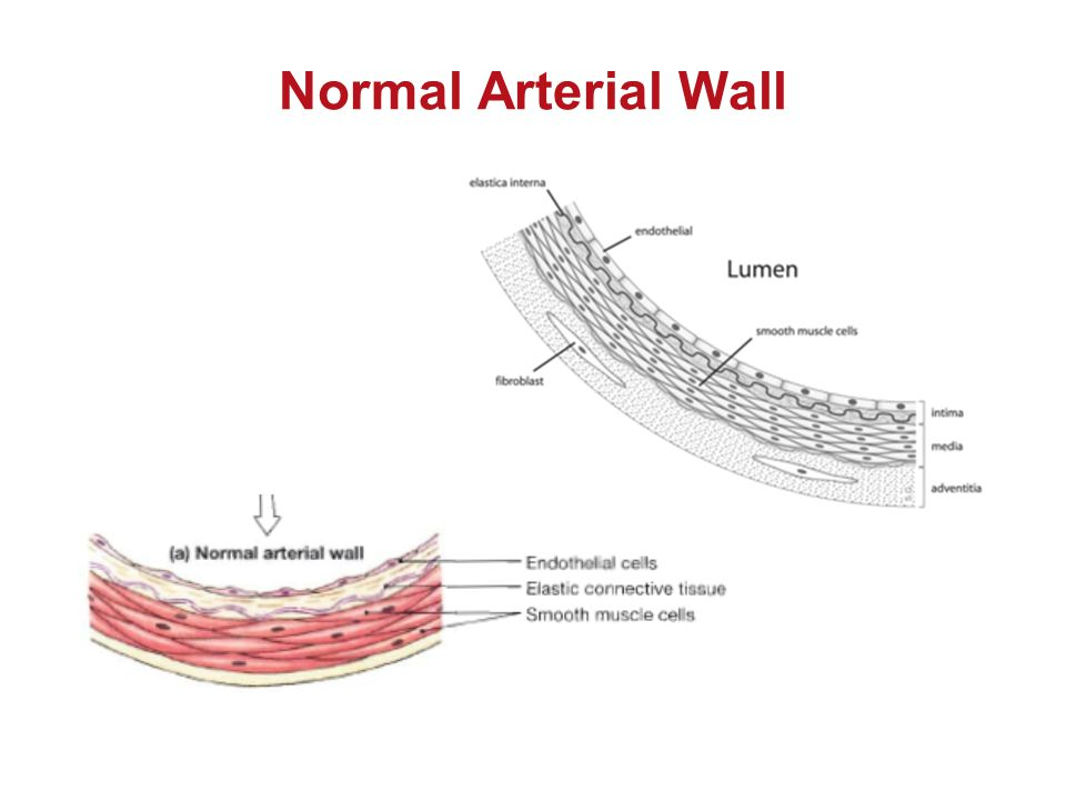 Normal Arterial Wall