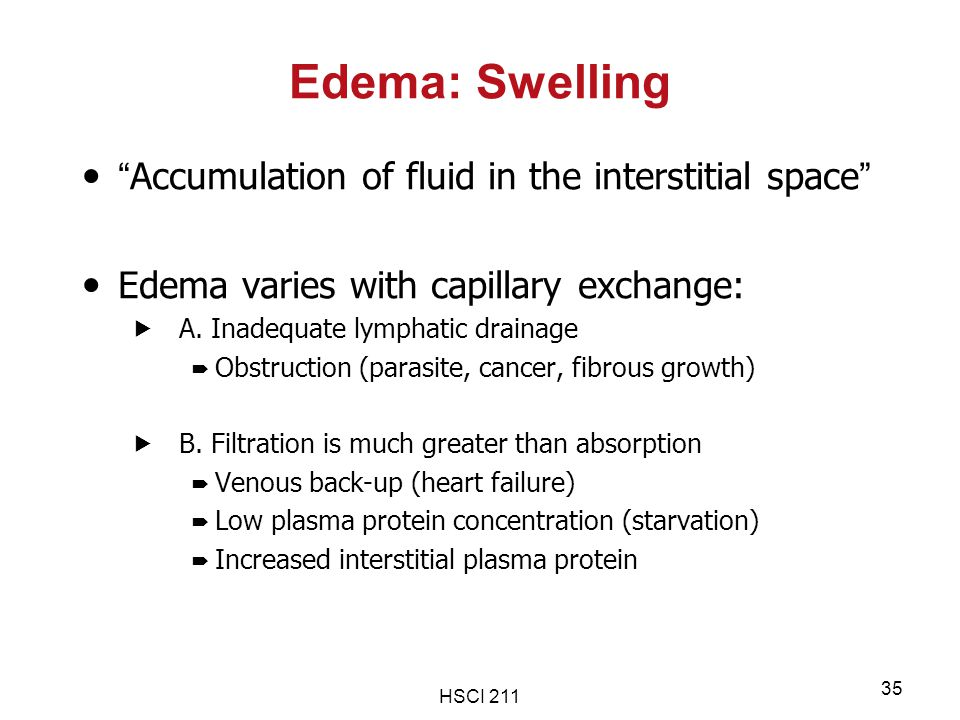 Edema: Swelling Accumulation of fluid in the interstitial space
