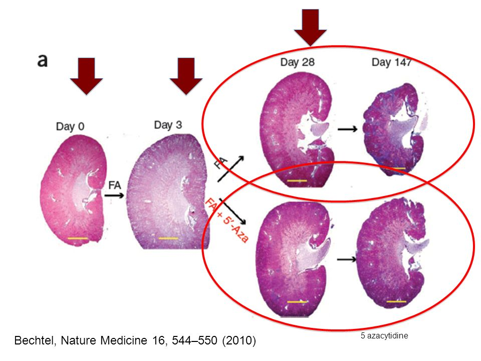 Bechtel, Nature Medicine 16, 544–550 (2010)