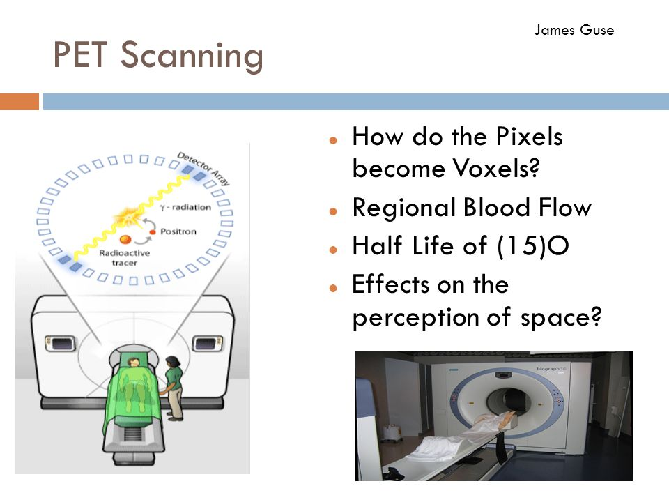 PET Scanning How do the Pixels become Voxels Regional Blood Flow
