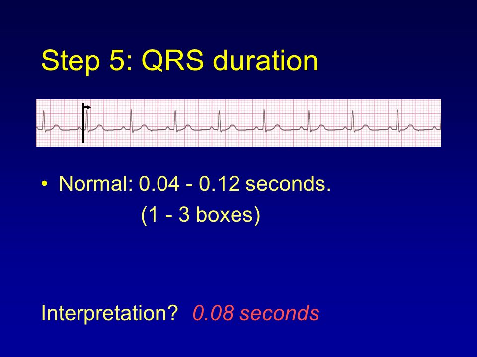 Step 5: QRS duration Normal: 0.04 - 0.12 seconds. (1 - 3 boxes)