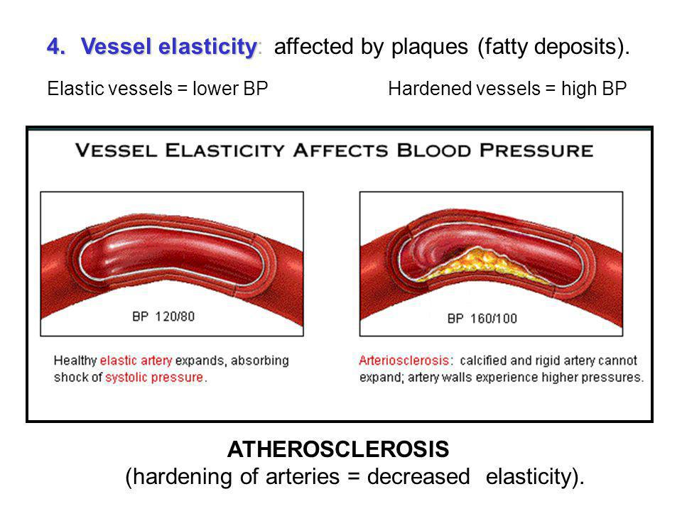ATHEROSCLEROSIS (hardening of arteries = decreased elasticity).