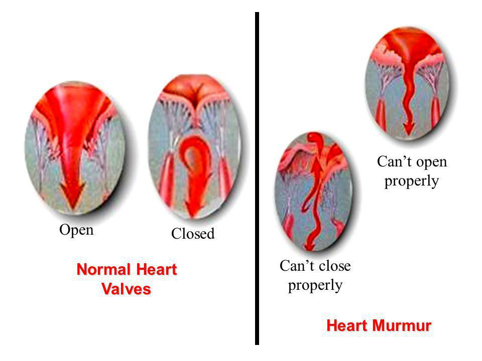 Can't open properly Closed. Open. Can't close properly. Normal Heart Valves.